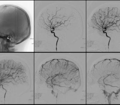 Консультации нейрохирурга_4