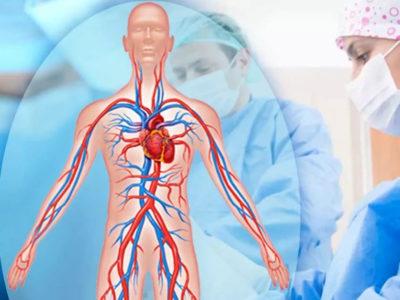 Консультации сосудистого хирурга_2