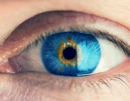 Лечение глаз_4